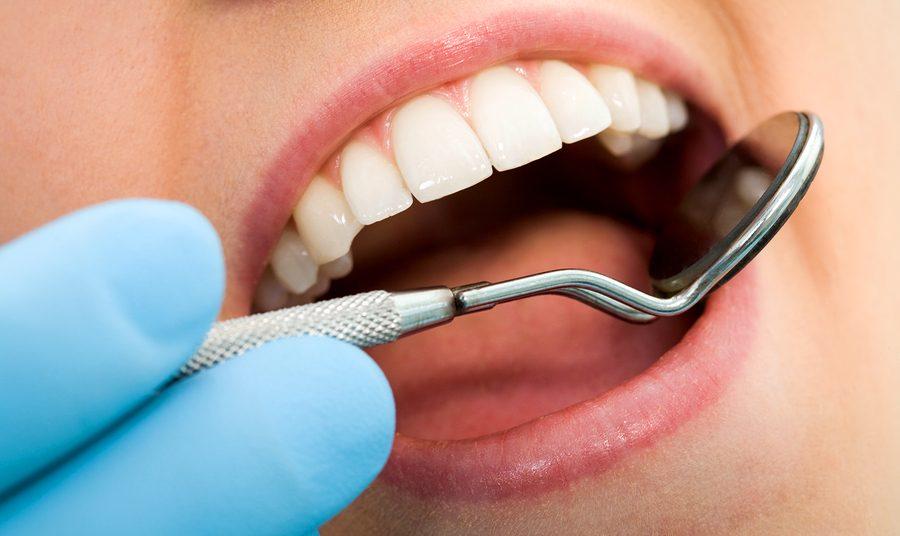 Dental check up teeth-mouth